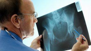 Xray_osteoporosis